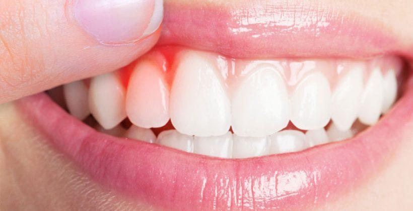 Gengivite e periodontite — prevenção, controle e tratamento
